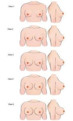 Предложена новая классификация для выполнения маммопластики - фото