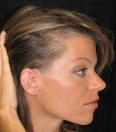 Проблемы лечения волос: алопеция - фото