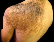 Проблемы лечения волос: гипертрихоз - фото