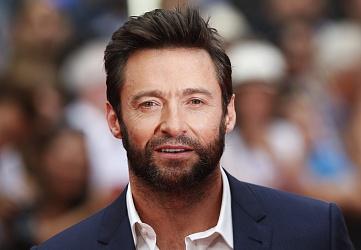 Новый тренд-пересадка бороды - фото